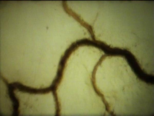 Система Микроциркуляции крови