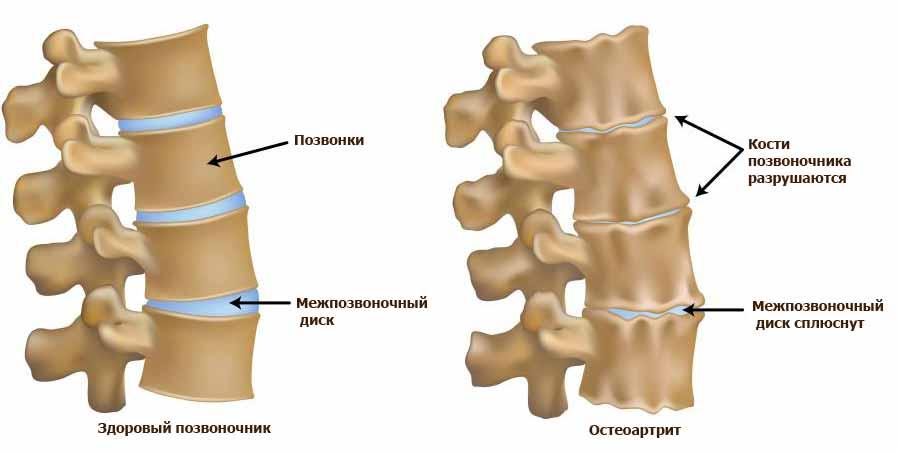 Иллюстрация здорового позвоночника и позвоночника с остеоартрозом позвоночника, частой причиной болей в спине