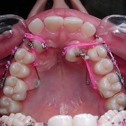 Великий труд стоматологов!