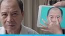 Kết Quả Sau 7 Ngày Cắt Da Chùng Chân Cung Mày - Viện Thẩm Mỹ Hà Nội
