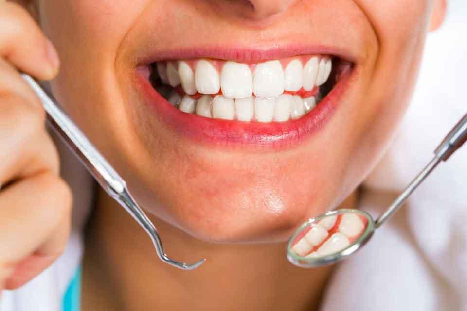 Мини импланты зубов