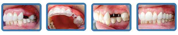 А Вы знаете для чего мини импланты зубов