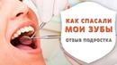 Что будет, если не лечить кариес. Отзыв подростка после реставрации зубов | Дентал ТВ
