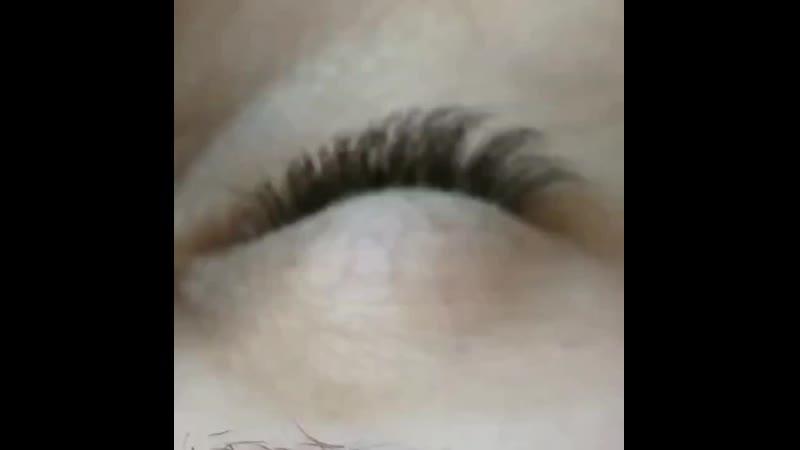Тремор глаз