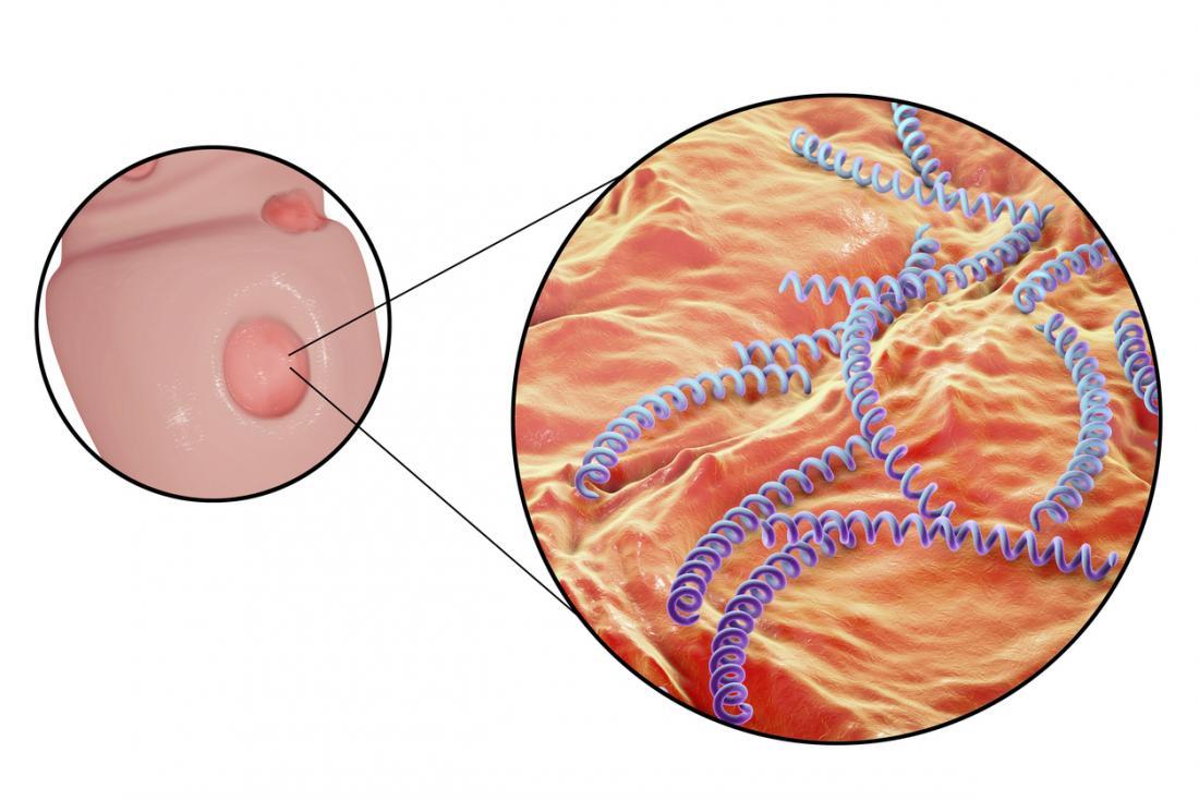 Сифилис распространяется через язвы, которые он вызывает, известные как шанкры.