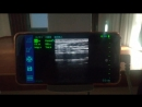 Dawei DW-SU202 7.5MHZ USB Linear probe examing carotid artery