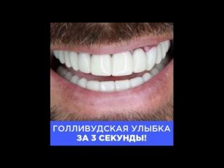 🔥 perfect smile veneers