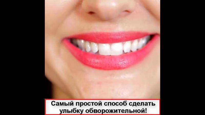 Инновационные виниры Perfect Smile Veneers!