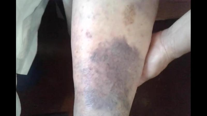 Травма голени в р-не щиколотки пенсионерки В. Е.;