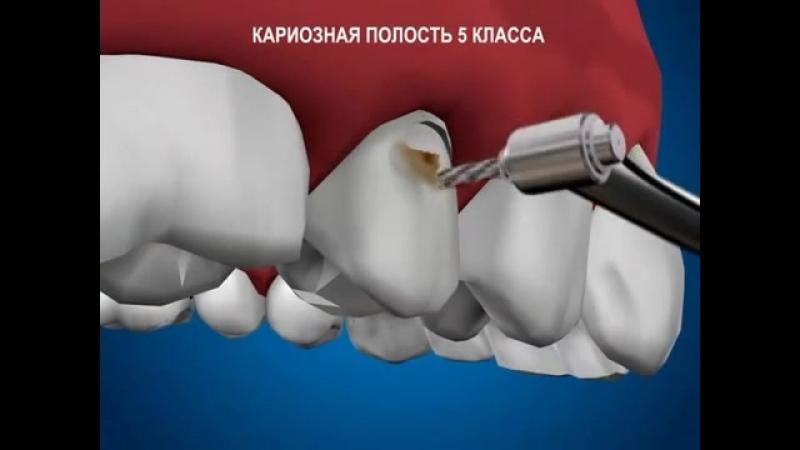 Терапевтическая стоматология Кариозная полость 5 класса