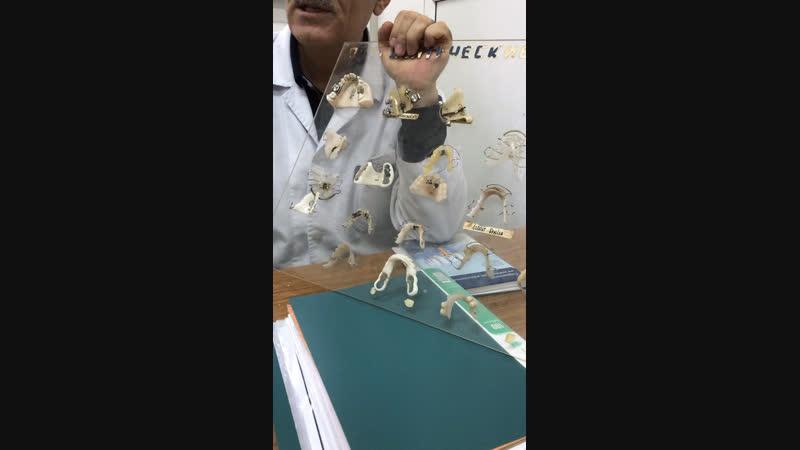 Ортодонтические аппараты