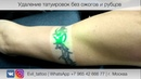 21 Удаление татуировки полностью