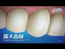 [v- Luhan @ Crest 3D White Toothpaste