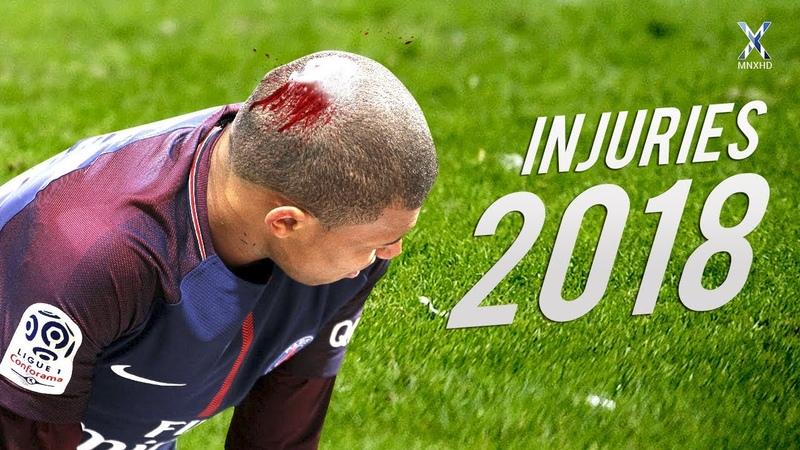 Football Injuries Horrible Moments 2018 ● HD