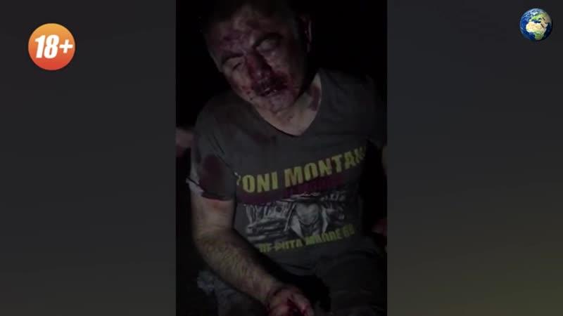 В Карачаево-Черкесии парни забили палками до смерти жителя аула по подозрению в наркоторговле (18)