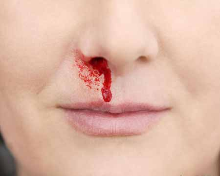 Носовое кровотечение является наименее серьезным из мокроты с кровью.
