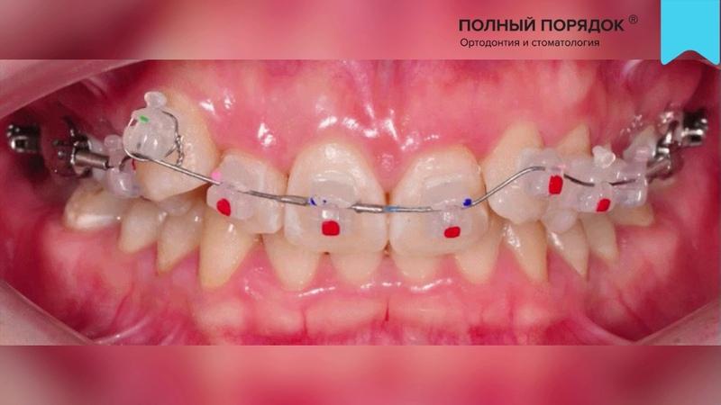 Видео 115. Прогресс за 4 месяца при лечении индивидуальной комбинированной брекет-системой INSIGNIA