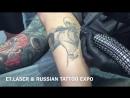Лазерное удаление татуировок и татуажа в Москве