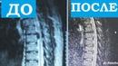 Грыжа Диска | ВЫЛЕЧИЛ БЕЗ ОПЕРАЦИИ | Herniated Disc Treatment