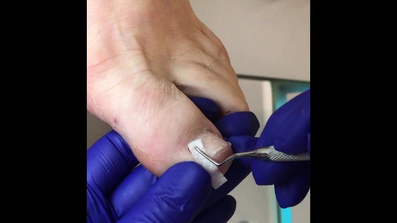 Обработка тампонада вросшего ногтя
