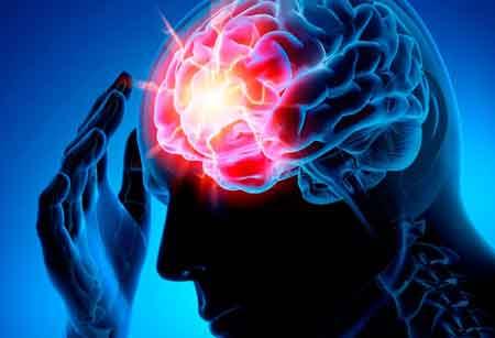 Инсульт сосудов головного мозга