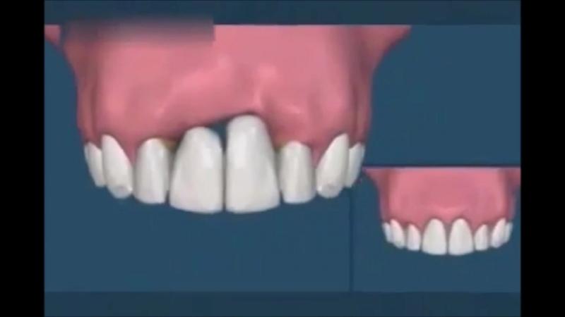 Разница между имплантами и металлокерамическими коронками Протезирование зубов Имплантология