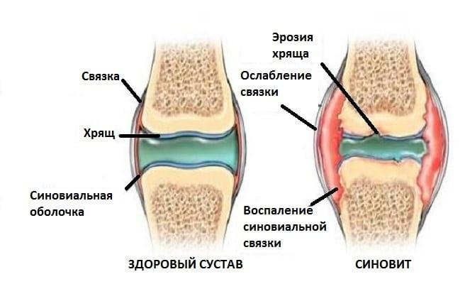Рецидивирующий синовит коленных суставов артроскопия коленного сустава в ростове-на-дону