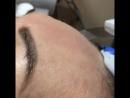 УЗ-пилинг представляет собой разновидность аппаратного ухода за кожей лица. -отшелушивание сухих частиц эпидермиса; -удаление че