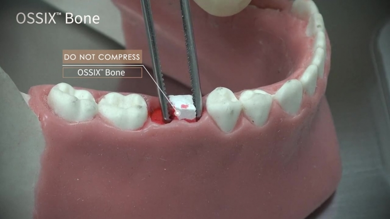 Video Tips- How to Use OSSIX Bone for Socket Preservation Following Extraction
