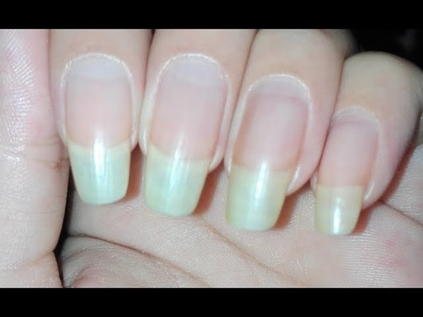 How to Grow your Nails Fast in One Week| Using Garlic and Olive Oil | Rose Pearl
