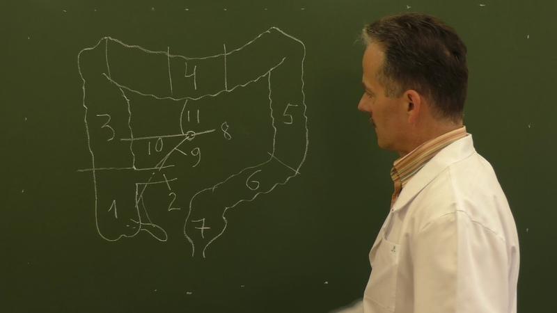 Правосторонняя гемиколонэктомия