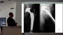 Переломы проксимального отдела бедренной кости у пожилых пациентов