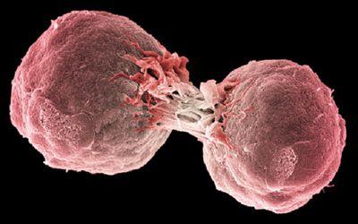 14 пациентов с ангиоиммунобластной Т-клеточной лимфомой испытывают усталость, подавленное настроение, боль, тревожное настроение и бессонницу и используют каннабис для лечения своей ангиоиммунобластной Т-клеточной лимфомы.