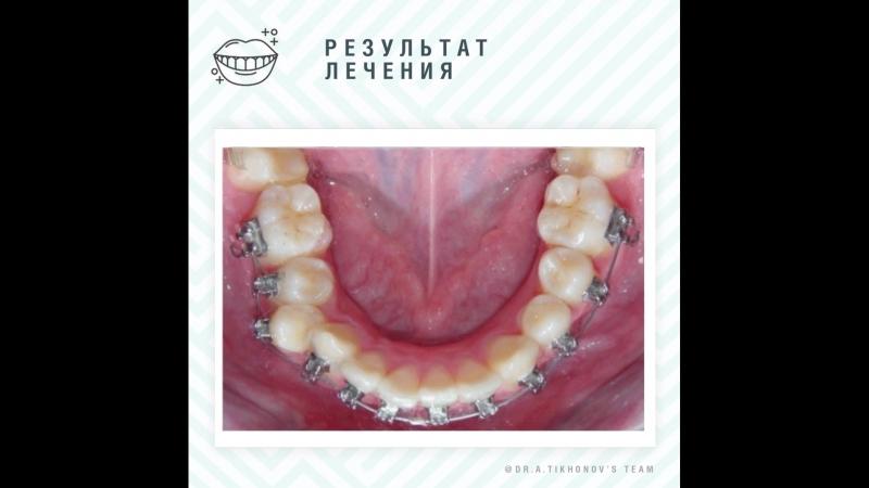 Клинический случай №2 Блог о хорошей ортодонтии А В Тихонов