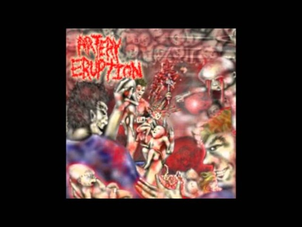 Artery Eruption - Ripped with Anal Forceps (HQ)