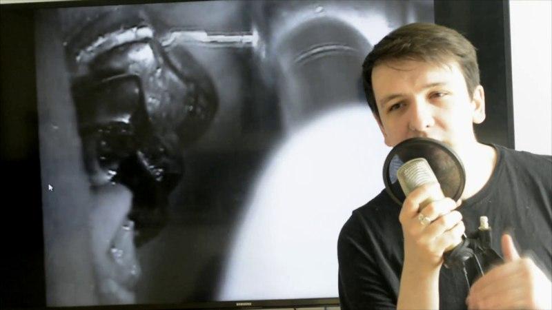 Чем и как промывать корневые каналы Ирригация в эндодонтии