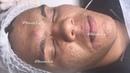 Pele com muita Acne - Limpeza de pele Profunda - clínica / centro estética.