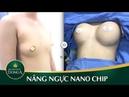Nâng ngực nội soi Nano Chip biến điều không thể thành có thể - YouTube