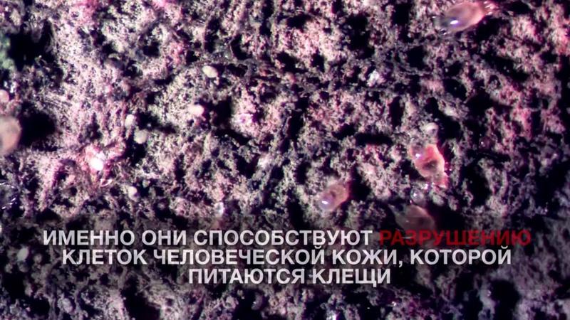 Пылевые клещи под микроскопом