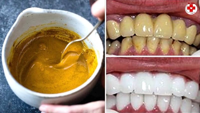 In 3 Minuti I Denti Gialli Brilleranno Come Una Perla Sbiancamento Dei Denti Con La Curcuma