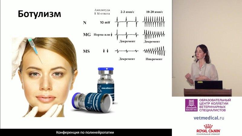Топическая диагностика заболеваний периферической нервной системы при помощи электронейромиографии