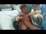 Жесткая посадка вБелоруссии пилот-экстремал загнал вплечо молодую сосну .