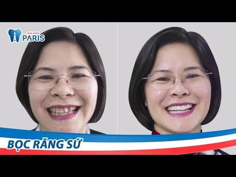 Trẻ lại 10 tuổi với nụ cười mới nhờ bọc răng sứ Nano Shining 5S