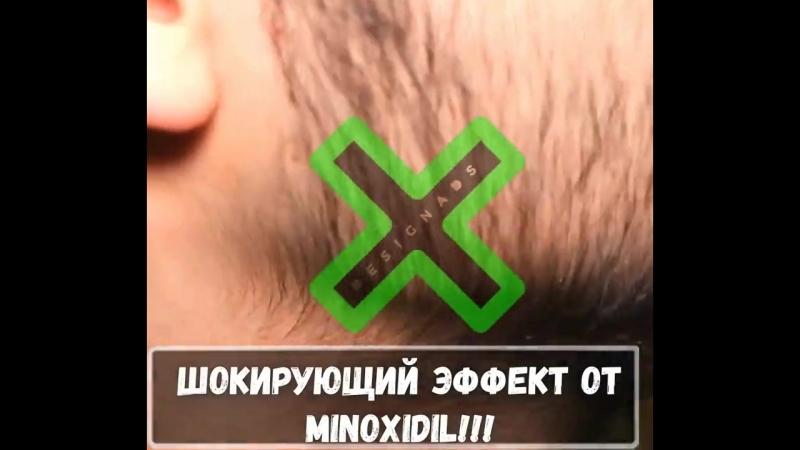 MINOXIDIL для густой шевелюры