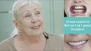 ВЕРНУТЬ ЗУБЫ ЗА 1 ДЕНЬ! Отзыв До и После операции. Эспадент имплантация зубов