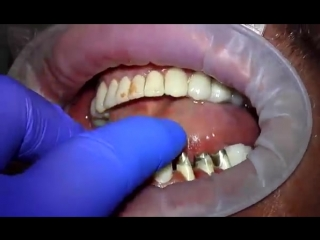 Установка металлокерамической коронки на зуб. Как ставят коронку на зуб.mp4