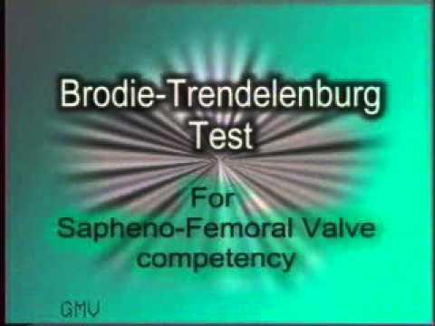 Examination of Varicose Veins