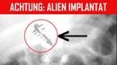 Alien Implantat gefunden! - Entführt von Außerirdischen?!