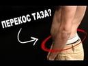 СИДЯЧИЙ ОБРАЗ ЖИЗНИ Перекос смещение таза упражнения для лечения и профилактики