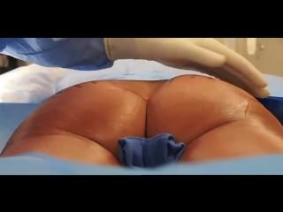 Lipofilling des fesses tunisie -  medecinehealthcare.com